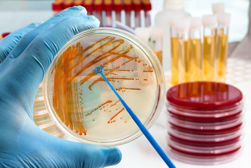 Entregue manter a placa com colônias bacterianas do estreptococo agal foto de stock royalty free