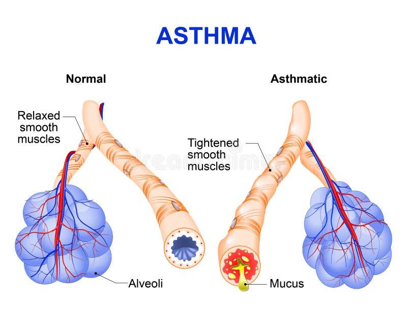 Entzündung des Bronchus, der Asthma verursacht vektor abbildung