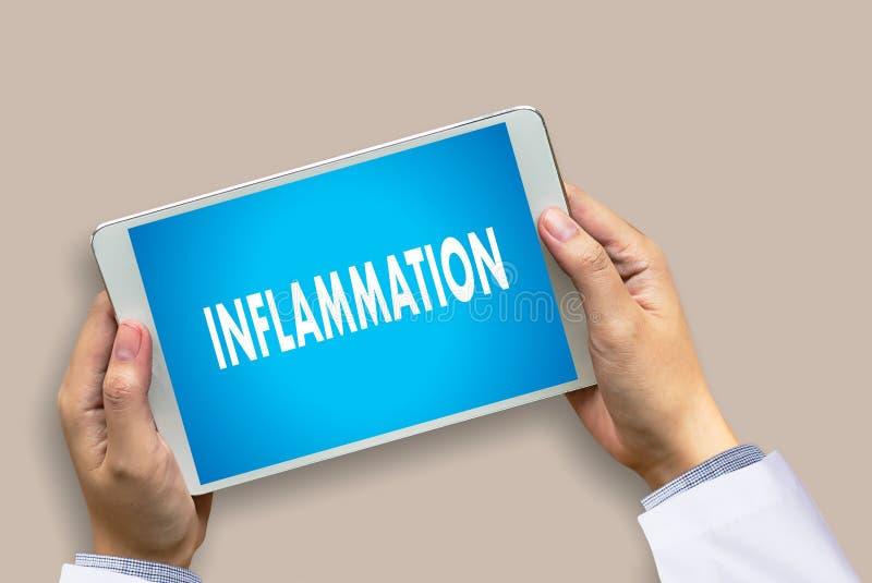 Entzündungs-Konzept ärztlicher Attest der Entzündung gemeinsamer, Lymphe stockfoto