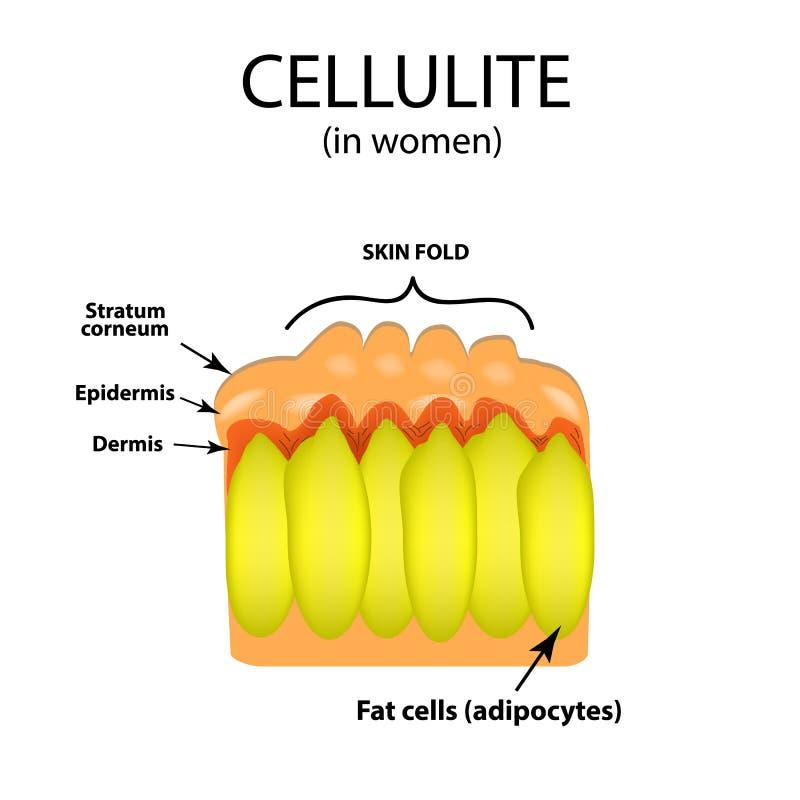 Envejecimiento de la piel en mujeres Celulitis Infografía Ejemplo del vector en fondo stock de ilustración