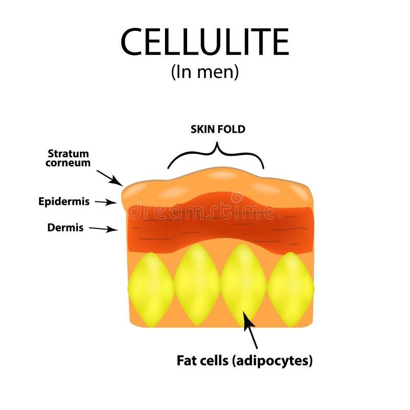 Envelhecimento da pele nos homens Celulite Infographics Ilustração do vetor no fundo ilustração royalty free
