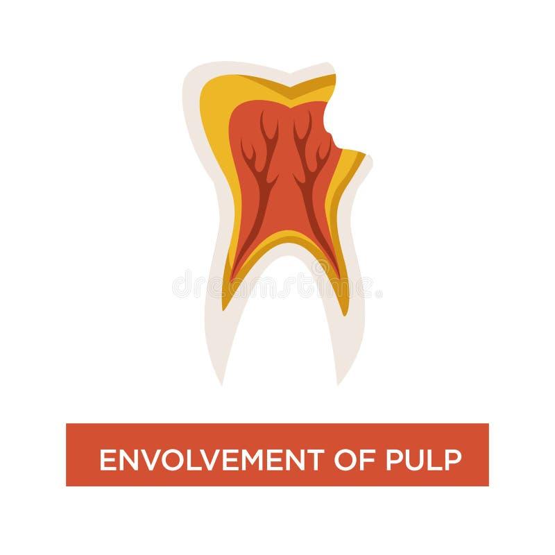 Envolvement miąższowa stomatologiczna choroby usta zagłębienia dentystyka ilustracja wektor