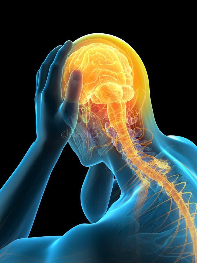 Enxaqueca da dor de cabeça ilustração do vetor