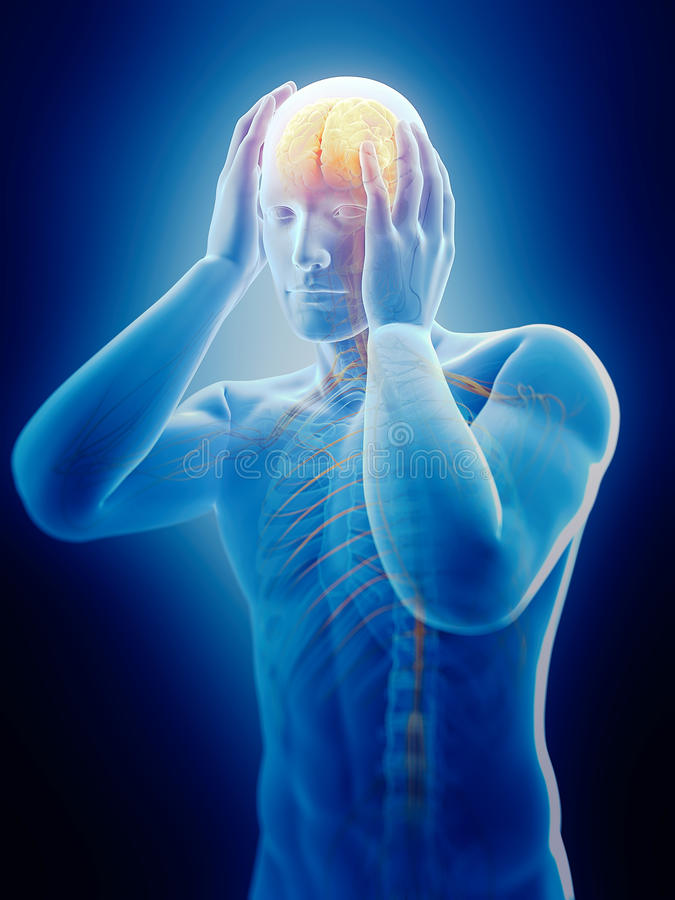 Enxaqueca da dor de cabeça ilustração royalty free
