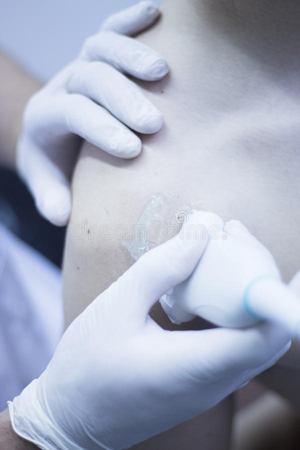 EPI percutaneous intratissue electrolysis. Scan to aid dry needling acupunture physiotherapy physical therapy treatment of patient in clinic royalty free stock images