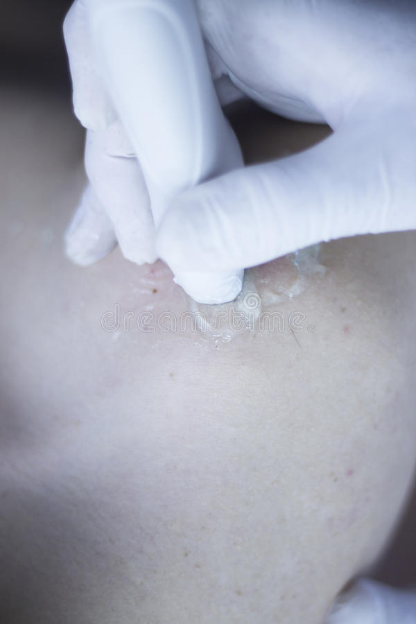 EPI percutaneous intratissue electrolysis. Scan to aid dry needling acupunture physiotherapy physical therapy treatment of patient in clinic stock photos