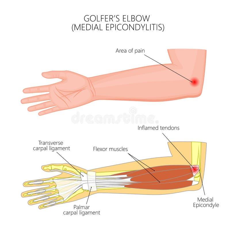 Epicondylitis ou golfeur médial illustration libre de droits