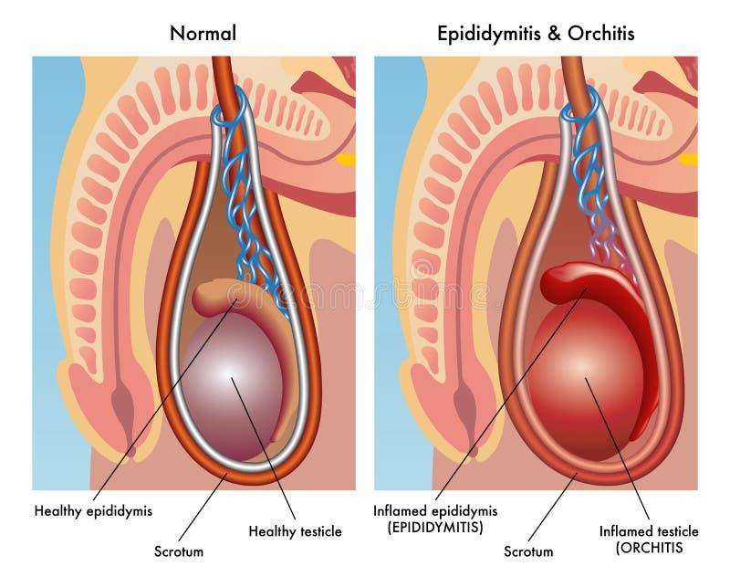 Epididymitis和睾丸炎 免版税库存照片