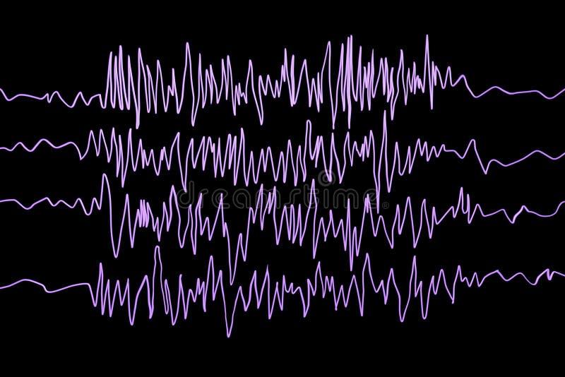 Epilepsi świadomość Electroencephalography w epilepsja pacjencie podczas schwytanie ataka royalty ilustracja