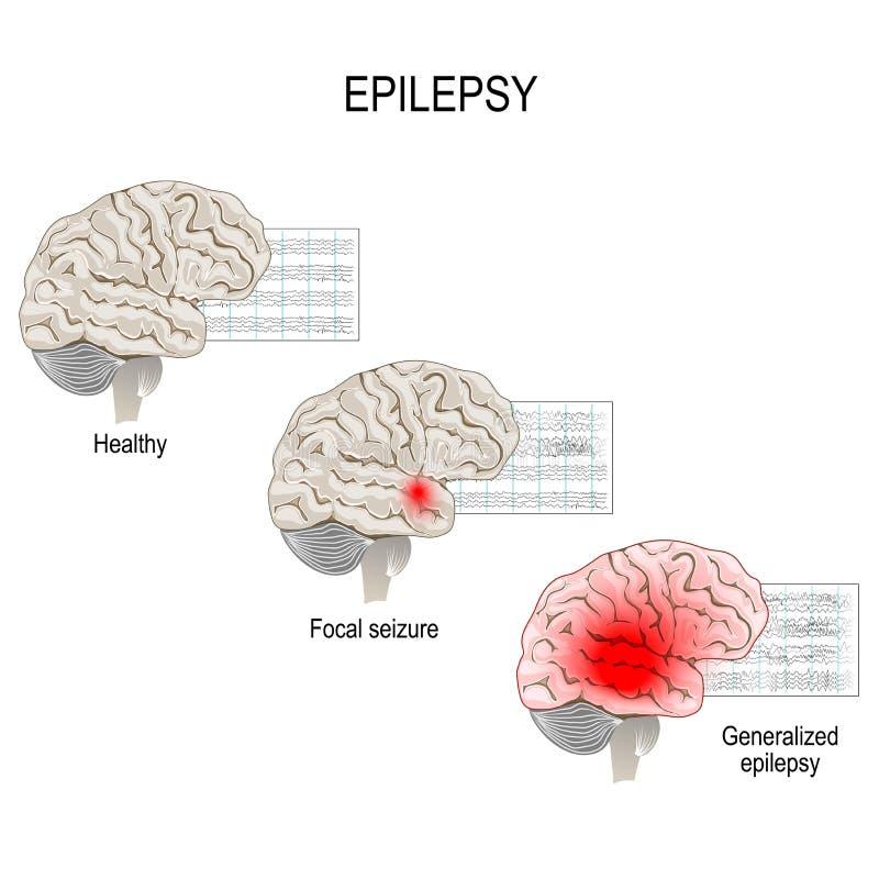 epilepsia EEG del cerebro sano y del ataque epiléptico ilustración del vector