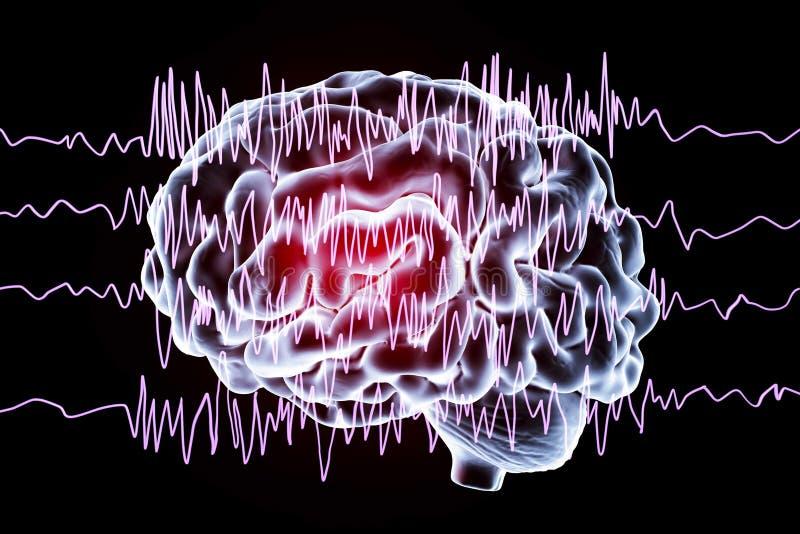 Epilepsimedvetenhetbegrepp stock illustrationer
