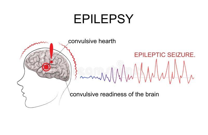 EPILEPSJA, czynniki pojawienie się ilustracji