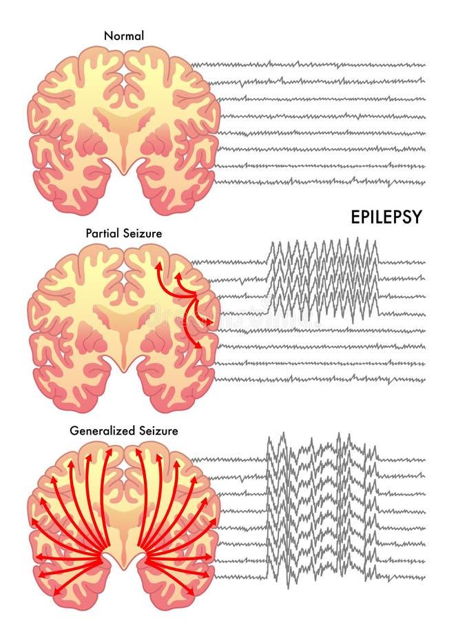 epilepsy ilustração do vetor