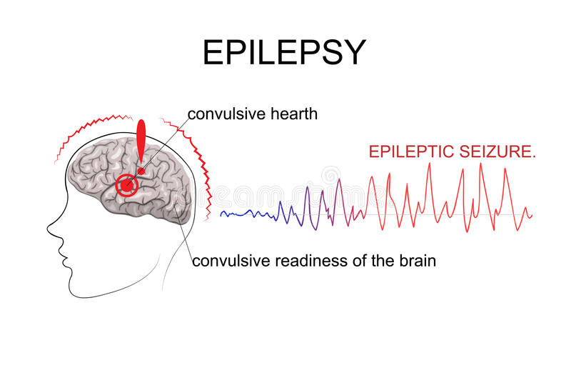 EPILEPSY, factors of emergence stock illustration