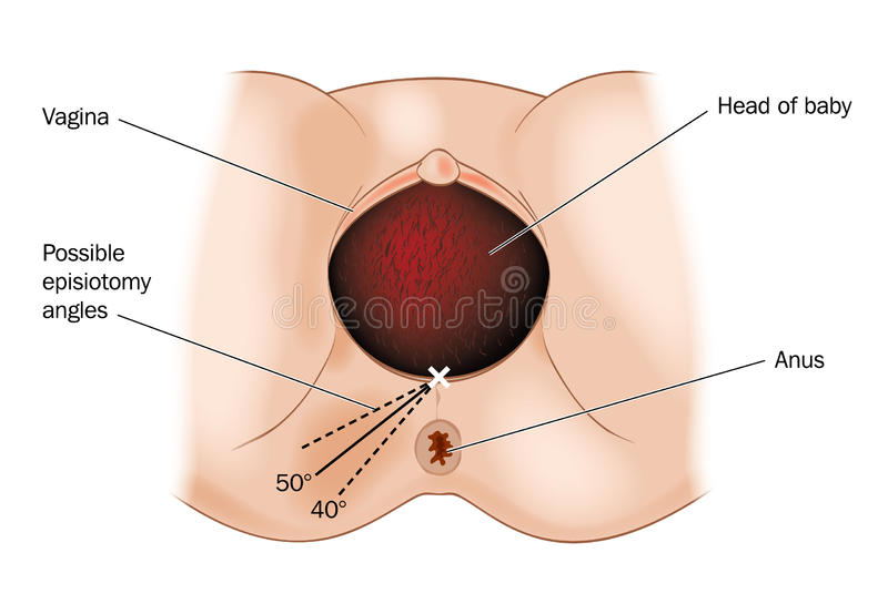 Episiotomy stock illustratie