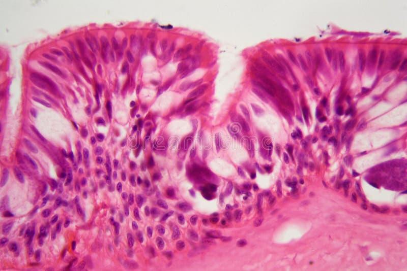 Epitelio ciliato sotto il microscopio immagini stock