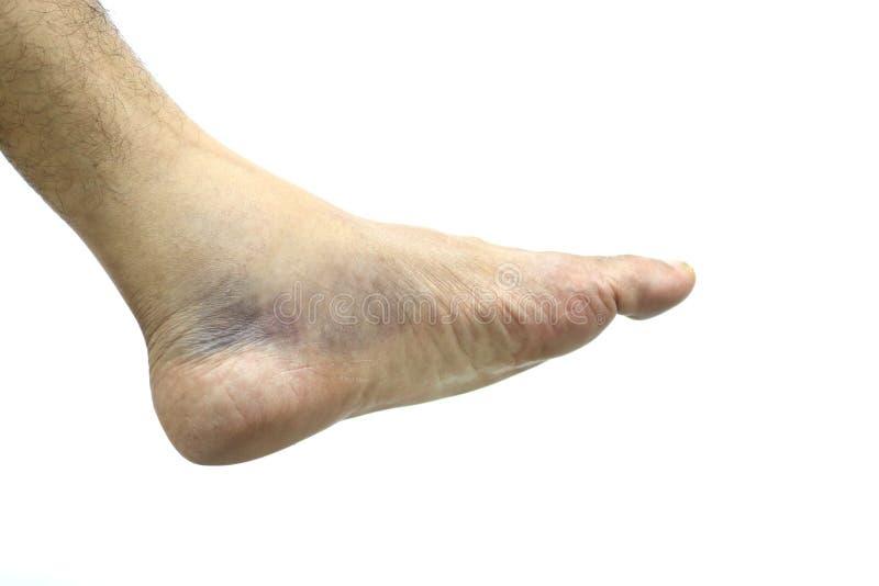 Equimoses do tornozelo, os ferimentos imagem de stock royalty free