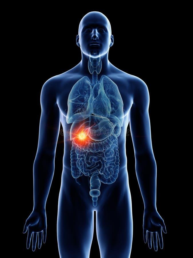 Equipa o câncer da vesícula biliar ilustração royalty free