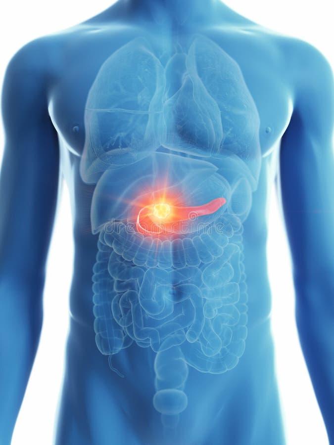 Equipa o câncer do pâncreas ilustração stock