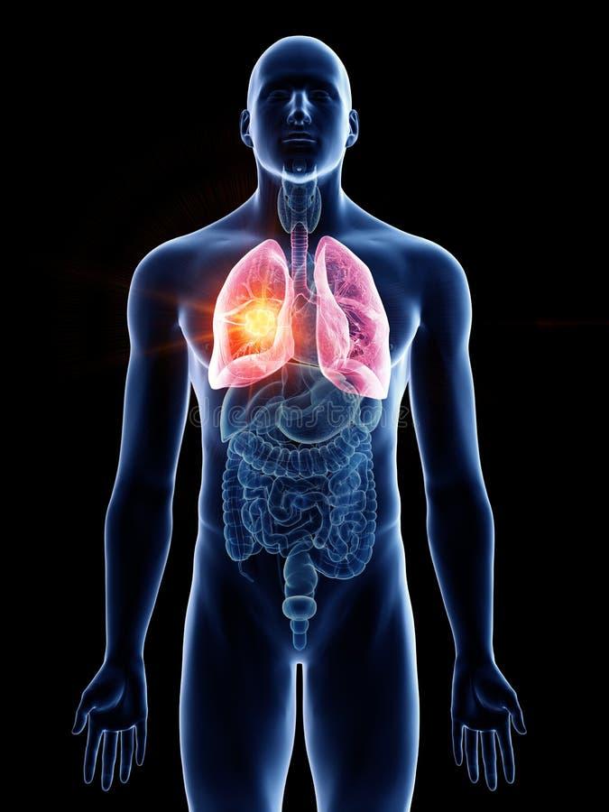 Equipa o câncer pulmonar ilustração royalty free
