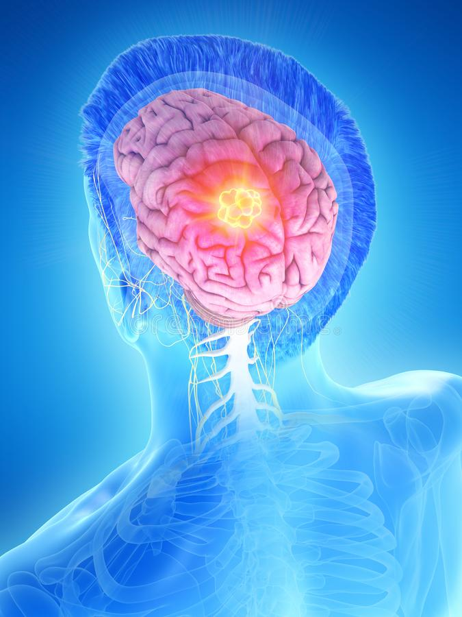 a equipa o tumor cerebral ilustração royalty free