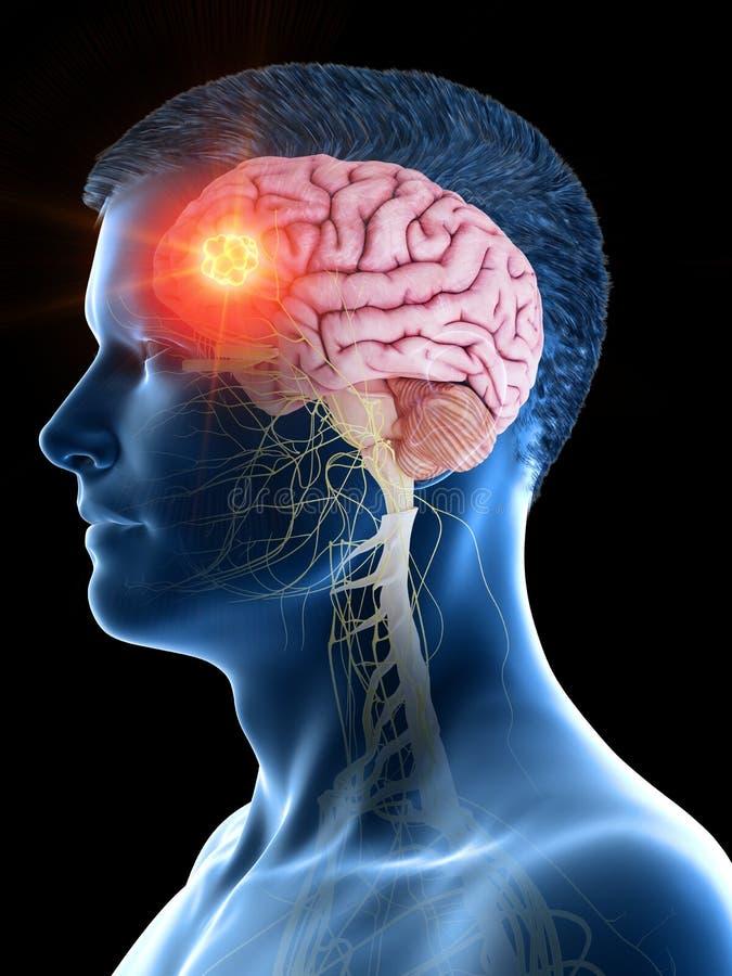 a equipa o tumor cerebral ilustração stock