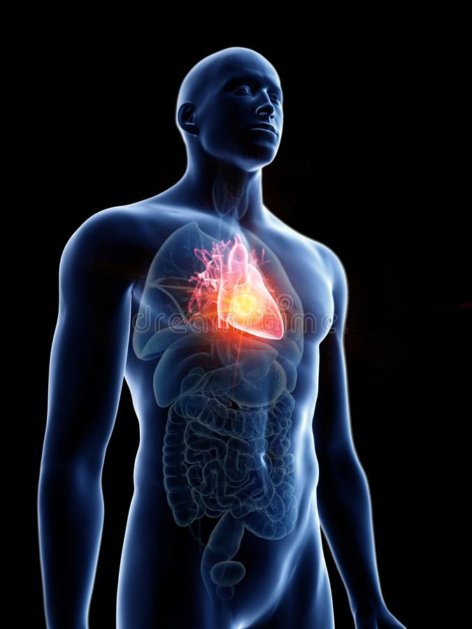 Equipa o tumor do coração ilustração stock