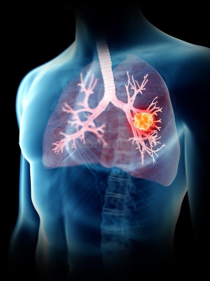 Equipa o tumor do pulmão ilustração do vetor