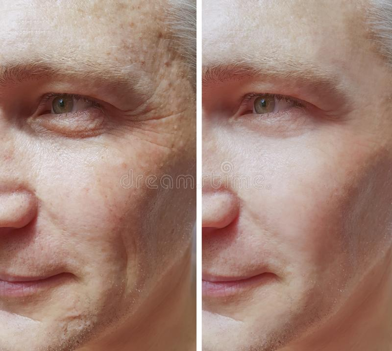 Equipaggi le grinze prima e dopo le procedure, la pigmentazione dell'acne di rimozione fotografia stock libera da diritti