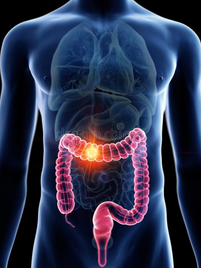 Equipaggia il tumore del colon illustrazione vettoriale