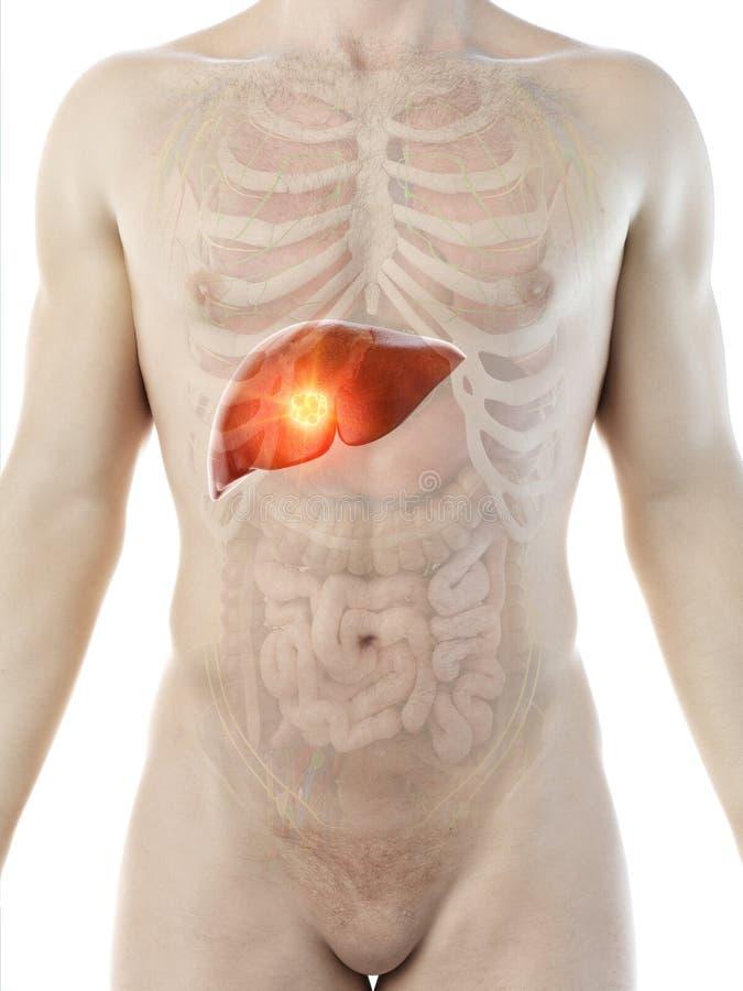 Equipaggia il tumore del fegato royalty illustrazione gratis