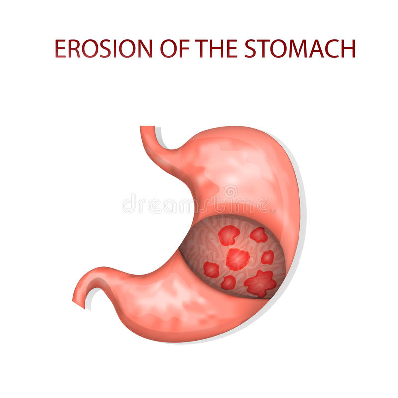 Erosion of the stomach. Illustrations of the erosion of the stomach royalty free illustration