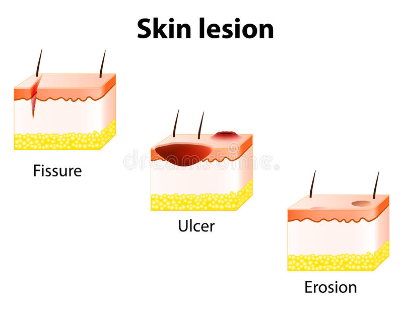Erosion, Ulcer and Fissure. Skin lesion royalty free illustration