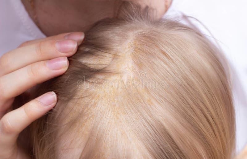 Erupci?n de piel seborreica en la cabeza del ni?o s, dermatitis seborreico, primer, atenci?n sanitaria, medicina foto de archivo