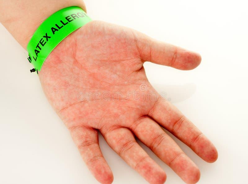 Eruzione di allergia del lattice immagine stock