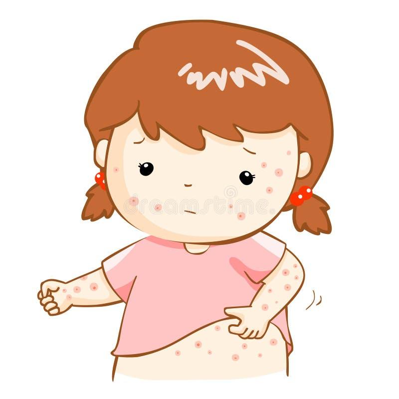 Eruzione itching di scratch della ragazza sul suo corpo royalty illustrazione gratis