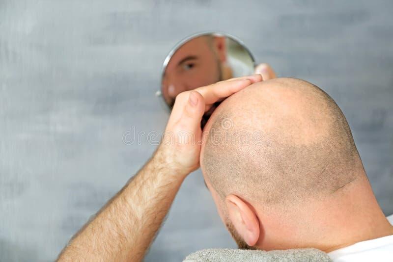 Erwachsener Mann mit dem Haarausfallproblemschauen stockbild