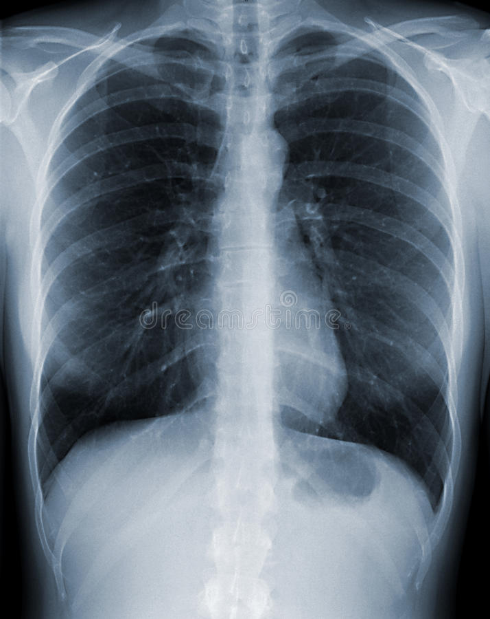 Esame radiografico del torace fotografie stock libere da diritti