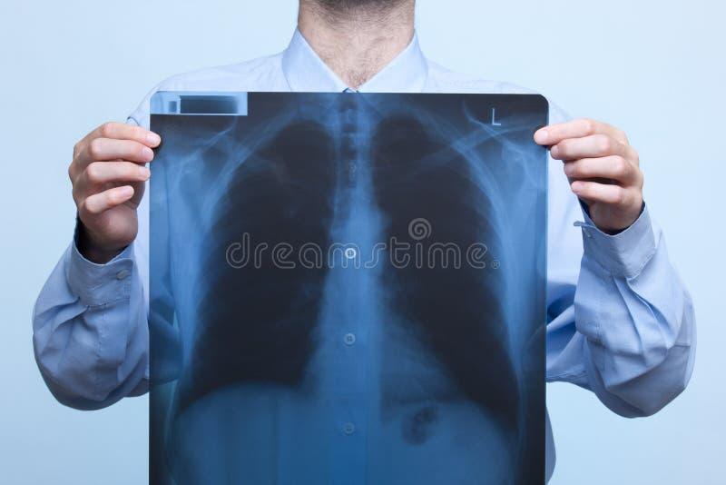 Esame radiografico del torace immagine stock