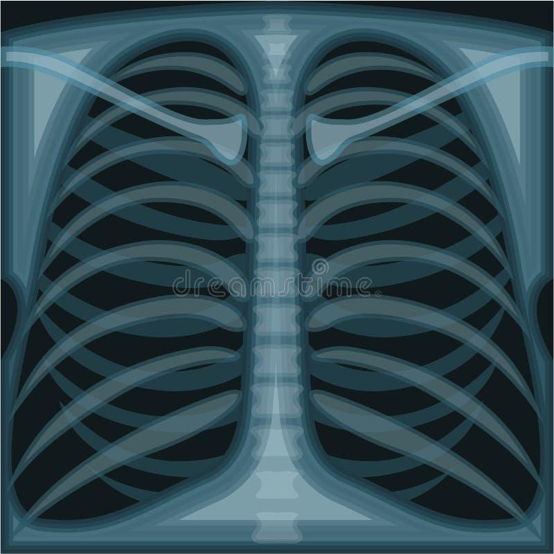 Esame radiografico del torace illustrazione vettoriale