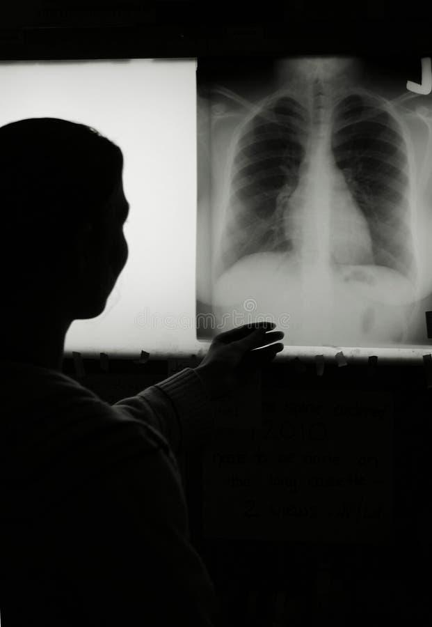 Esame radiografico del torace immagini stock libere da diritti