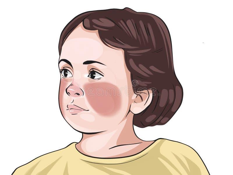 A escarlatina é uma doença que pode ocorrer como resultado de uma infecção por Streptococcus grupo A Strep, também conhecida como ilustração royalty free