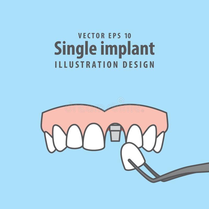 Escoja el vector superior del ejemplo del implante en fondo azul guarida libre illustration
