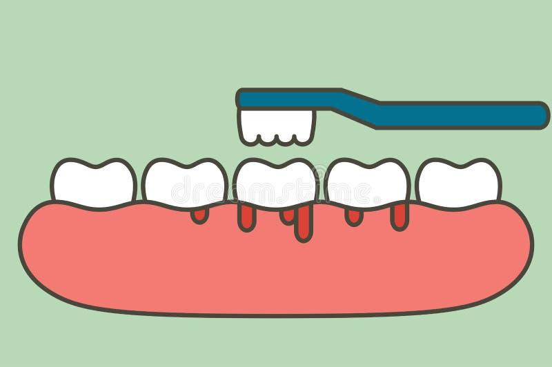 Esmagamento dos dentes com hemorragia nos dentes, gengivite ou escurvatura ilustração do vetor