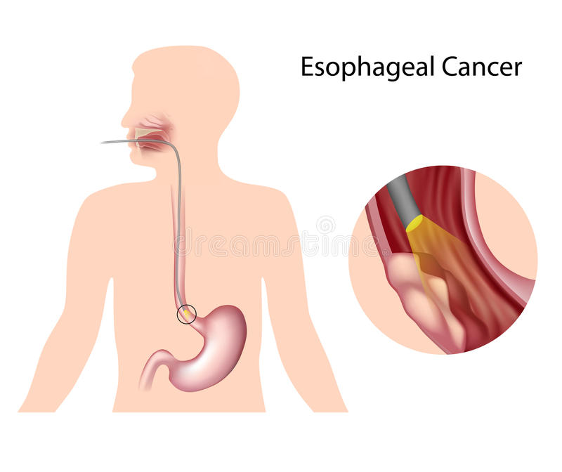 Esophageal cancer. And diagnosis by endoscopy technique royalty free illustration