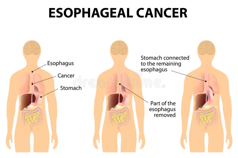 Esophageal kanker stock illustratie