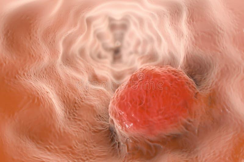 Esophageal kanker, illustratie vector illustratie
