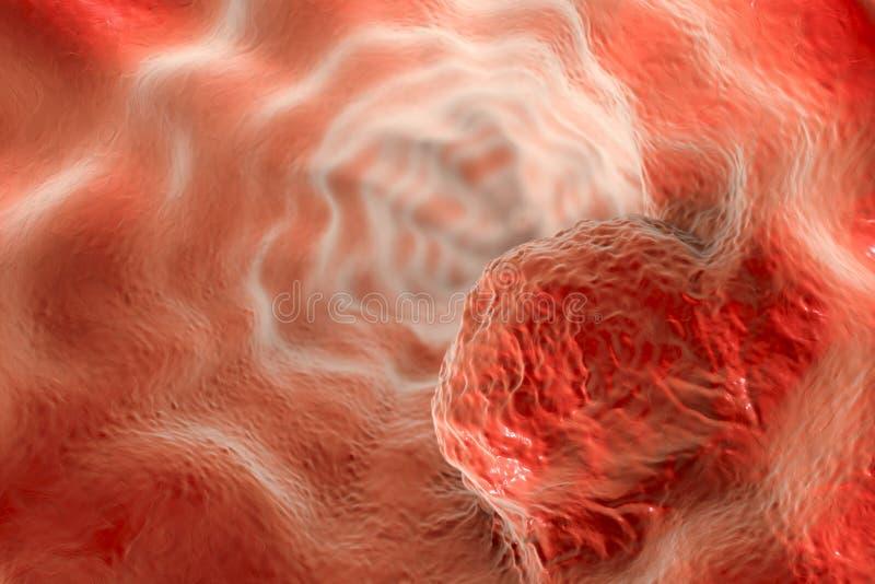 Esophageal kanker, illustratie royalty-vrije illustratie