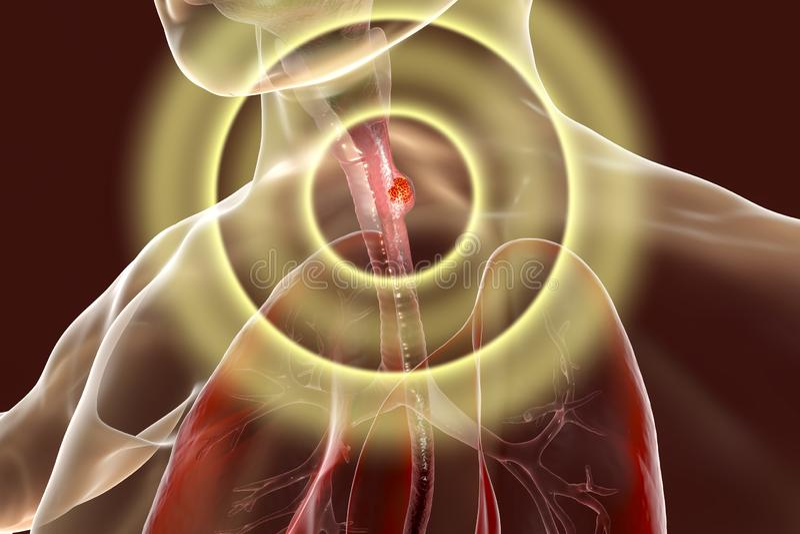 Esophageal kanker, illustratie stock illustratie