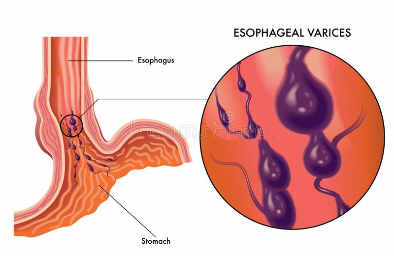 Esophageal varices medical illustration vector illustration